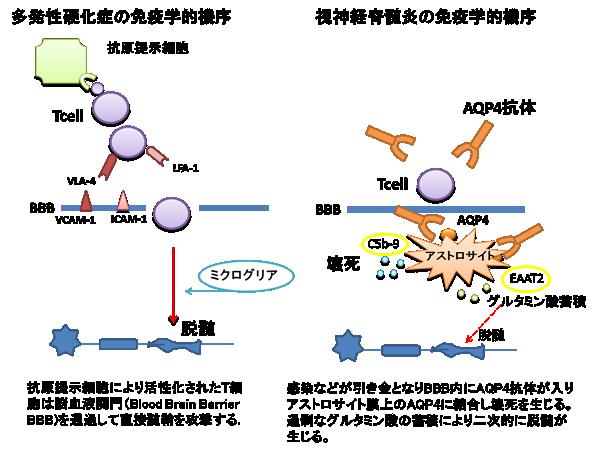 多発性硬化症と視神経脊髄炎における誘発電位検査の有用性