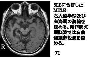 SLEに合併したMTLE