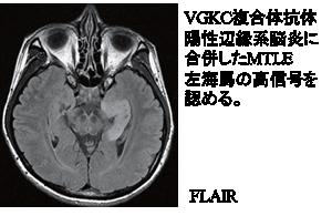 VGKC複合体抗体陽性辺縁系脳炎に合併したMTLE